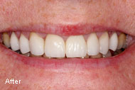 Dental Crowns Before After photos